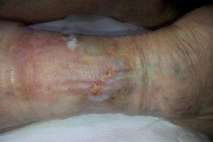 8-dUlcer_varicos_al_gambei_dupa_4_saptamani_de_tratament